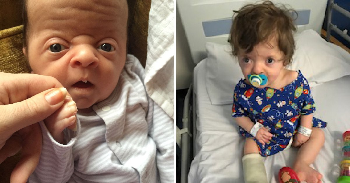 Mother who once hid her baby from the world signs him up to be a model