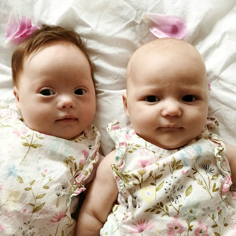 One twin born with Down's syndrome as pair described as 'one