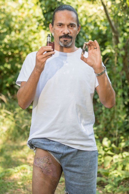 - Picture of Jason Curmi who's Ecigarette battery pack blew up in his pocket. TRIANGLE NEWS 0203 176 5581 // contact@trianglenews.co.uk By Emily Hall A DAD-of-six narrowly missed needing skin grafts after his Ecigarette's battery pack blew up in his pocket. Jason Curmi???s ??10 Primark jeans were left shredded when the device exploded right next to his skin. He was left with burns spread up his right thigh, and doctors say they are so severe he may be permanently scarred.
