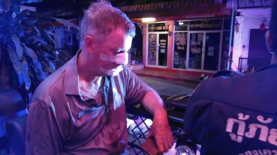 NEWS COPY - WITH PICTURES A British tourist was treated for a broken nose after getting into a fight with another Brit over what songs were played on the jukebox. David Williamson, 64, was drinking with a friend at the bar in Pattaya, Thailand, last night when he complained about his choice of songs. The sales manager, from Brighton, tried to change the tune chose by the other man - sparking angry scenes. A scuffle ensued and David was punched in the face suffering a suspected broken nose before the other man fled. David said: ''He just hit me, smashed me, straight in the face. I've never had a problem with him before until this.'' Staff at the bar said the two men liked to sit and drink beer together and were usually friendly. But the disagreement started over an argument in the early hours of the morning just before closing time at 2am. Bar girl Noi, 26, said: ''The problem started when the injured person changed the song that the other man liked. This made them angry. ''He hit the other man in the face and there was a lot of blood. The other man ran away.'' Police Commissioner Supachai Chanalong said he arrived with paramedics and treated the injured Brit at the scene. He added: ''Mr David Williamson was taken to hospital to have his injuries checked. We are gathering all the evidence before legal proceedings continue.'' ENDS