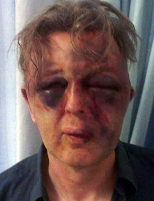 "Undated Metropolitan Police handout photo of Paul Kohler who was subjected to ""extreme"" violence and left traumatised with life-changing injuries during a burglary at his home in Wimbledon."