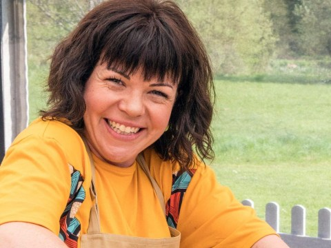 What happened to Briony from Bake Off's hand?