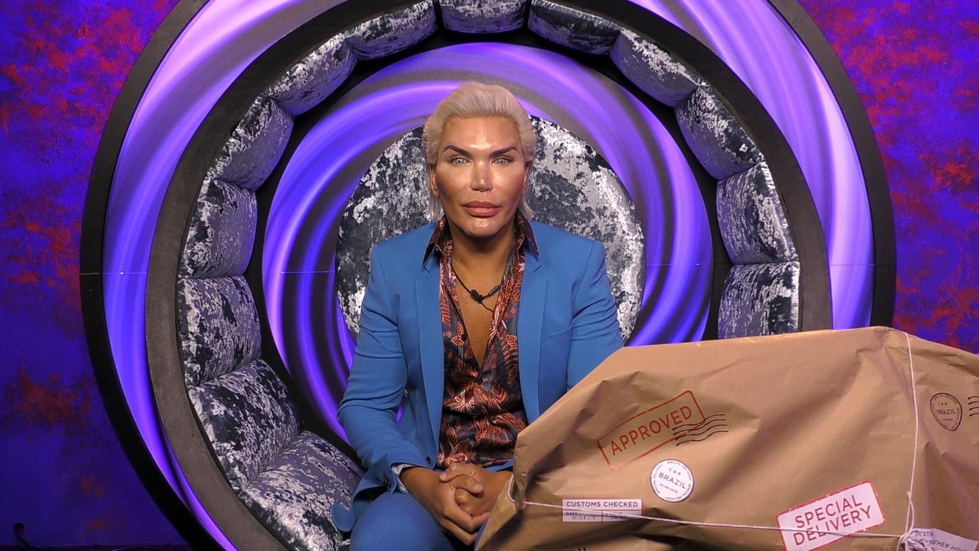 CBB - Rodrigo talks plastic surgery and says he wouldn't encourage anyone to follow his example