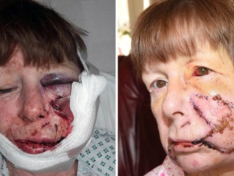Woman, 62, left with shocking injuries after dog attack is told she 'brought it on herself'