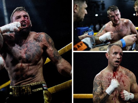 Gruesome pictures highlight the brutal reality of bare-knuckle boxing in the UK