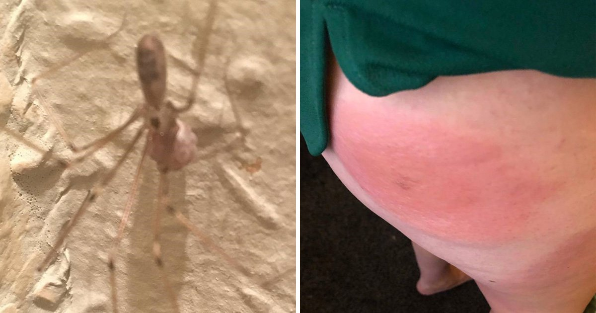 Mum left unable to sit down after being bitten by a spider on her backside