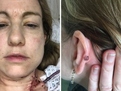 Mother with advanced skin cancer blames sunbeds for the disease