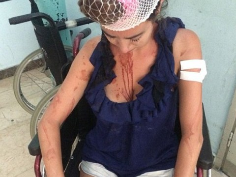 Woman beaten with metal bar for 'refusing to pay extra at hostel'