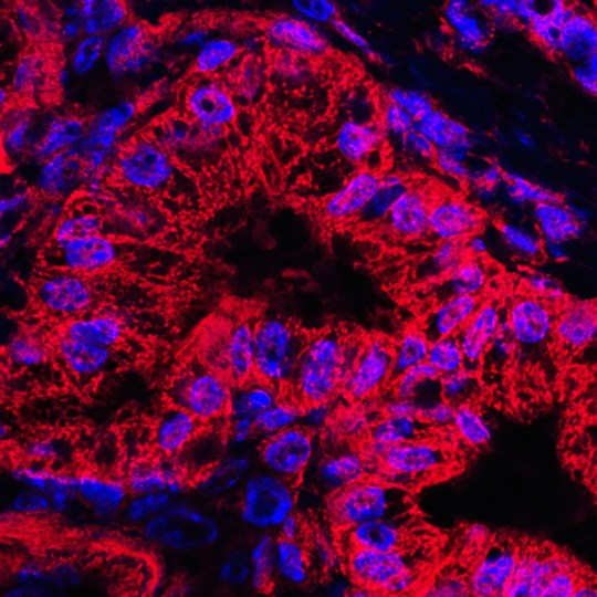 Mitochondrial staining (red) and nuclear staining (blue) of abnormal pancreatic ducts from a mouse model of human pancreatic ductal carcinoma. Mitochondrial shape changes occur throughout the progression of pancreatic cancer and the machinery that regulates the dynamics of mitochondria may be a promising new therapeutic target in the fight against this disease. David Kashatus. National Cancer Institute / Univ. of Virginia Cancer Center
