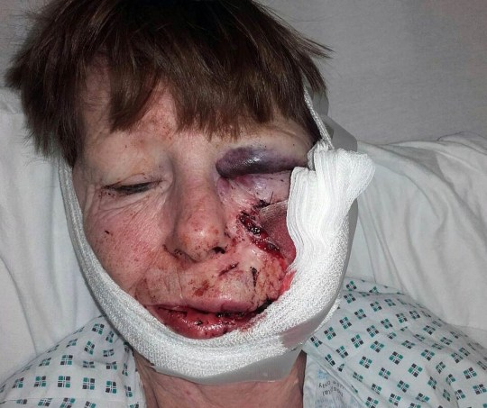 Fee ?75 per image for online and ?150 per image for print. A mum of two Sylvia Baillie, 60, from Paisley who was attacked by a neighbours Akita dog after attending a funeral.