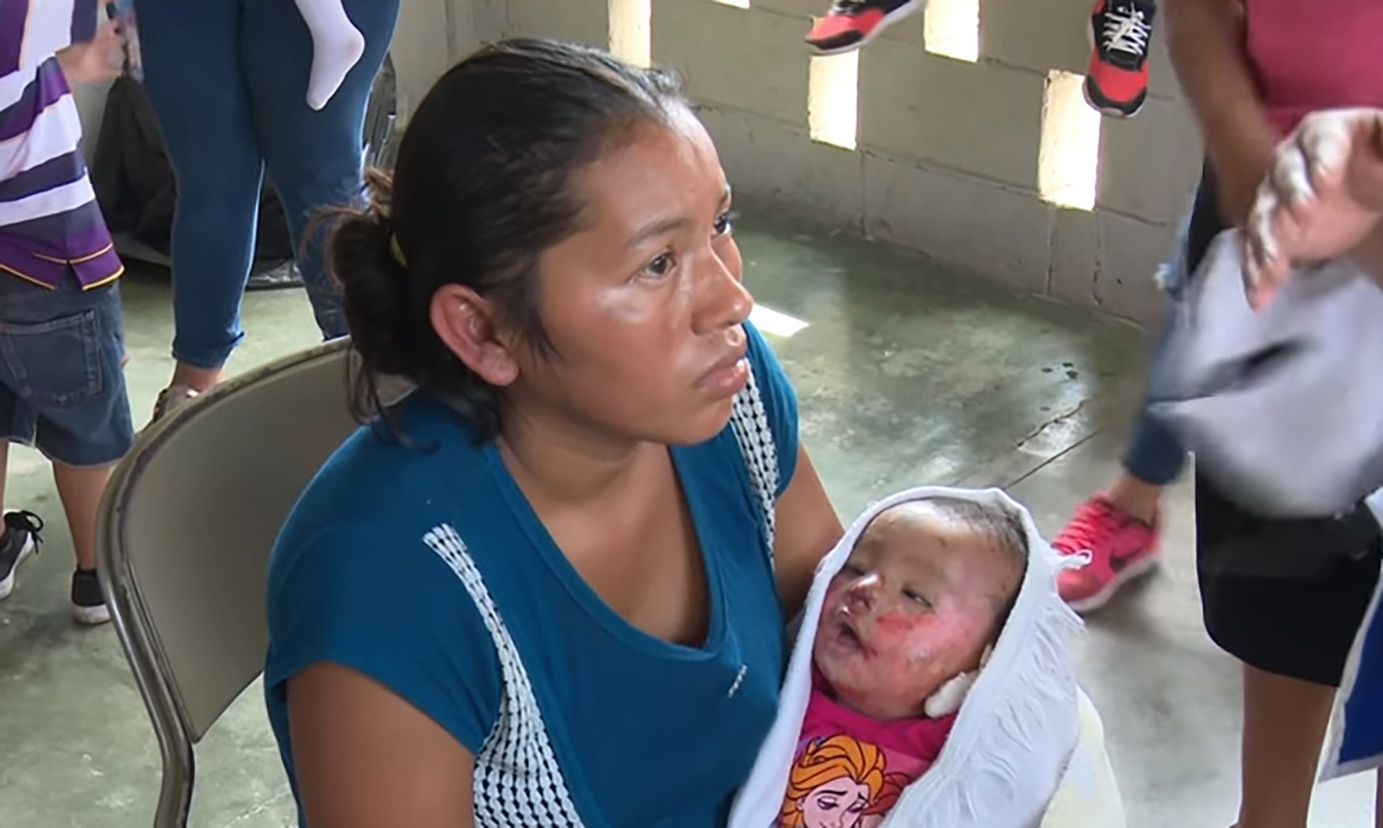 "Pic shows: Ivis Montoya with her baby. The mother of a seven-month-old baby declaed dead at the hospital realised her little girl was still alive during her funeral. The baby was found to be still breathing inside a church in the city of San Pedro Sula, in the northern Hondurean department of Cortes. The baby girl, Keilin Johanna Ortiz Montoya, had been admitted to the Rivas hospital in Villanueva with convulsions, diarrhoea, severe hydration and blistered skin caused by a bacterial infection on August 3rd. Despite intensive treatment at the hospital???s paediatric unit, the baby was pronounced dead three days later on Monday morning at 09.00am, and the corresponding death certificate was reportedly issued. The mother, Ivis Montoya, left the hospital with her supposedly dead baby in her arms and went to a cousin???s house. She said: ""I had no money to get home."" After a candle lit vigil during the night the baby was then taken to the church in nearby Dos Caminos for the funeral. Ivis said that they placed her daughter???s body on a chair in the church as: ""We had no money for a coffin."" It was at this point that the mother noticed the little Keilin was still breathing. Reluctant to return to the hospital that had declared her baby dead, she rushed to a local clinic. Here medical staff administered the baby some medicine, a woman???s support group persuaded her to take the baby back to the paediatric unit report local media. The baby girl was immediately taken to the intensive care unit of A and E. The head of the hospital???s Paediatric Department, Elba Campos, said that the incident was being investigated, but that it was too early to reach any conclusions. Keilin is said to be in a serious condition."