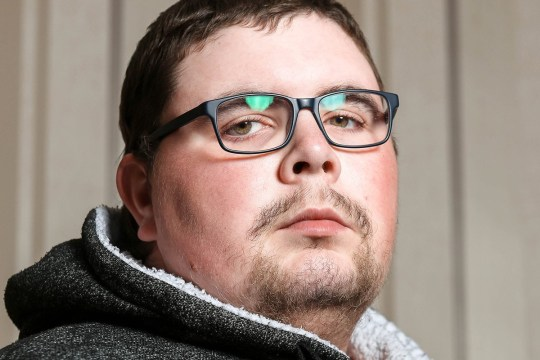 Pics by James Ward/Caters News - (Pictured: Jordan Payne, 23, Ripley, Derbyshire) - The family of a man with testicular cancer in his BRAIN says that he has become a different person since being diagnosed with the condition. Jordan Payne, 23, found out that he had testicular cancer of the brain after a building site accident in 2017. The labourer from Ripley, Derbyshire had been working on the site when a pipe ruptured, sending stones flying towards him.SEE CATERS COPY