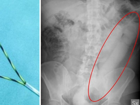 Man had 23-inch dildo stuck up his backside for 24 hours before doctors could remove it