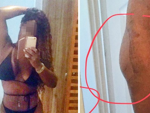 Beautician who travelled to Turkey for a bum lift claims it has 'ruined' her