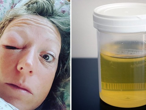 Health coach drinks two glasses of urine a day after it helped heal her swollen eye