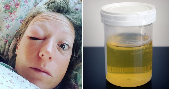 Urine cured swollen eye