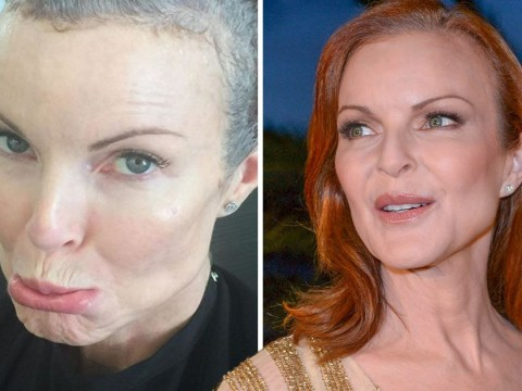 Desperate Housewives actress Marcia Cross has been battling cancer in secret as she laments losing her hair
