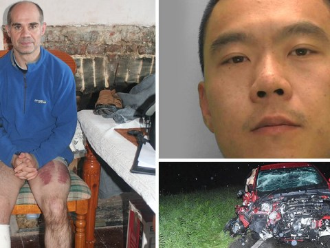 Shocking pictures show damage caused after hit-and-run driver left man amputated