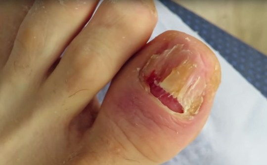 Pus leaks out of fungal toenail as woman rips it straight off ...