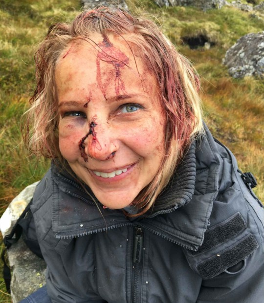 AMAZING pictures show a bloodied mountain climber smiling for the camera - unaware she had broken her neck. Magdalena Michalowska tumbled 15 metres (50ft) from a rock face on Stob Garbh near Stirling. Although bloodied, brusied and sore, Magdalena, had no idea how badly hurt she was and happily posed for snaps. It was only when rescuers arrived that the seriousness of the situation began to emerge and the 41-year-old was airlifted off the mountain three hours later. In addition to a cracked cheek, broken ankle and severe bruising, doctors realised she had fractured one of the vertebrae in her neck. Originally from Poland and now living in Glasgow, Magda and her companions set out to tackle the 957m (3,142ft) peak on Saturday.