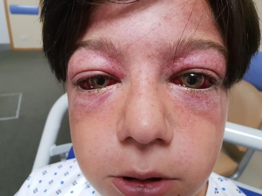 Tyler Broome, 11 from Nottingham, showing his bulging red eyes and spots around them known as G-measles, or Geasles after being spun on a roundabout as fast speed using the wheel of a motorcycle. See Masons copy MNROUNDABOUT: An 11-year-old boy has been left seriously ill with an horrific injury only seen in fighter pilots after being forced to recreate a YouTube stunt known as the 'Roundabout of Death.' Tyler Broome was left with possible damage to his brain and vision and with bulging eyes after being found unconscious near a playground roundabout. The young boy had been told to sit in the middle of the roundabout as it was spun at high speed using the rear wheel of a motorcycle by a group of youths.