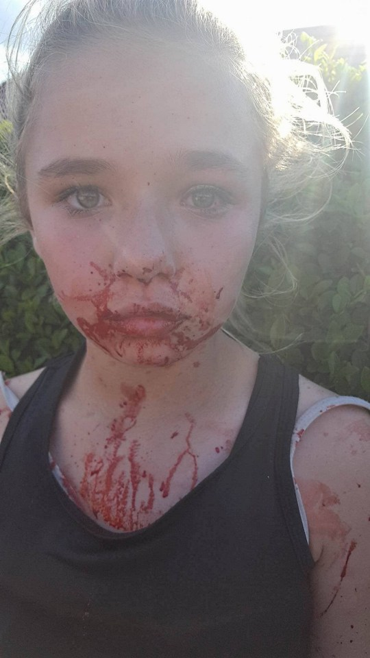 PIC FROM Kennedy News and Media (PICTURED: KIESHA SCHOFIELD, 11, WITH BLOODIED FACE AFTER ATTACK) A teenage girl is 'too scared to walk to school' after she was left 'battered and bloodied' by a friend's boxer MUM - who was only fined ??120 over the attack. Little Kiesha Schofield was just 11 when she was assaulted by boxer 'the secret assassin' Jade Binch, 28, after a row with her daughter who was a school pal. Her mum Tiffany Schofield, 33, assured the youngster that Binch would be jailed for the attack, which her mum claims left Kiesha with a fractured nose, bruising and a bloodshot eye. SEE KENNEDY NEWS COPY - 0161 697 4266