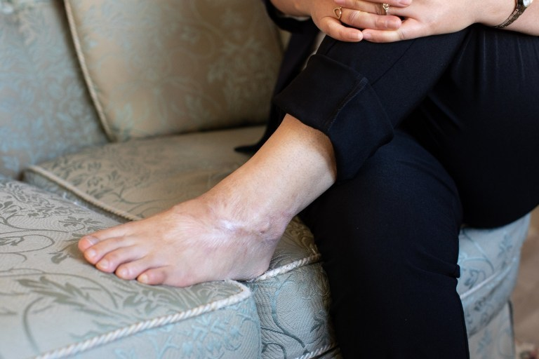 ? Joel Goodman for Metro - 07973 332324 . 25/09/2018 . Bury , UK . North Korean refugee JIHYUN PARK (50) shows injuries to her foot inflicted by torturers in North Korea , at her home in Bury . Jihyun was imprisoned , tortured and trafficked by the regime in North Korea before she managed to escape with the help of her husband . Photo credit : Joel Goodman