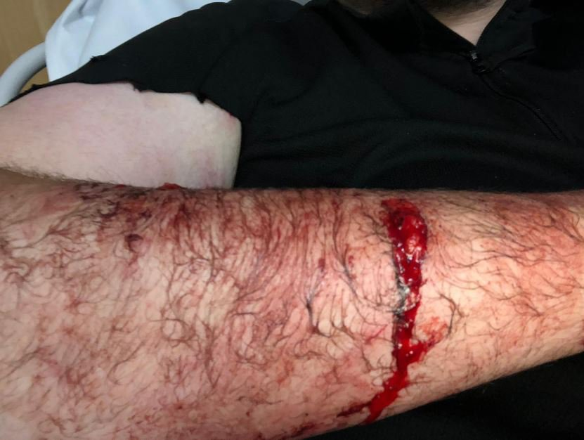 """Injuries to a police officer after a dog attack in Leeds yesterday 29/09/18. See Ross Parry copy RPYDOG: Police today (sun) released graphic photos of the puncture wounds suffered by an officer as he tried to seize two out-of-control dogs which also savaged an OAP. The officer - who has not been named - was bitten at the scene of a dog attack which also left two members of the public with serious injuries. One man, aged 59, suffered ?potentially life-changing injuries? in the violent mauling after being set upon by the pair of """"very aggressive"""" dogs."""