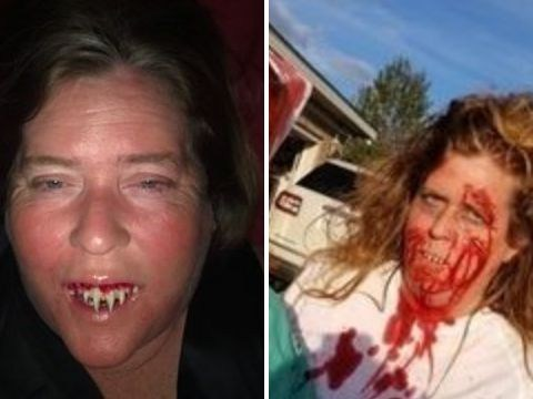 Woman screamed with pain after fake Halloween zombie fangs fused to her gums