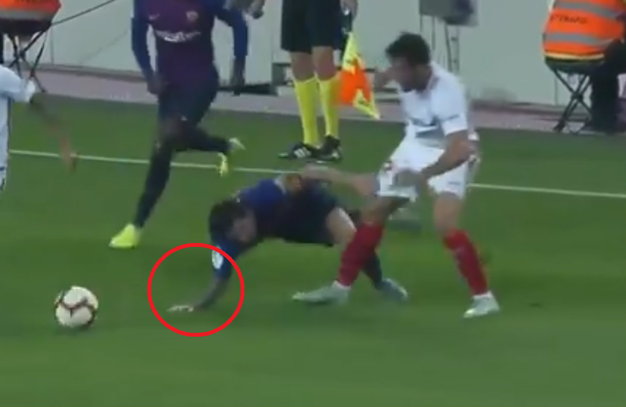 Barcelona star Lionel Messi forced off with sickening arm injury ahead of Real Madrid clash