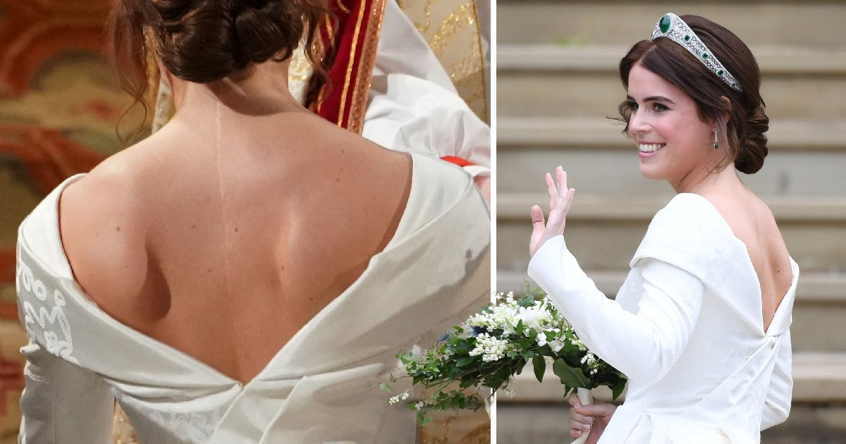 How did Princess Eugenie get the scar on her back as her wedding dress exposes it?