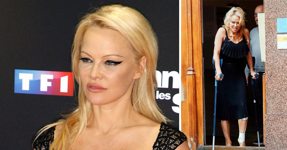 Pamela Anderson pictured on crutches after injuring leg on France's Dancing With The Stars