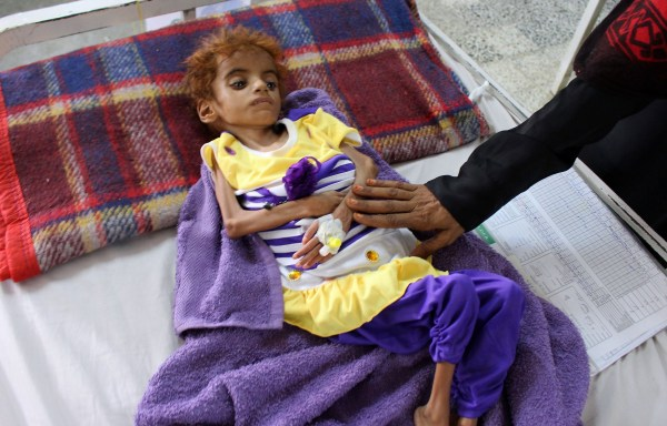 (FILES) In this file photo taken on September 8, 2018, a Yemeni child suffering from malnutrition receives treatment at a hospital in the northern district of Abs, in Yemen's Hajjah province. - The UN has warned that international aid agencies are losing the fight against famine in Yemen, where 3.5 million people may soon be added to the eight million Yemenis already facing starvation -- more than half of them children. (Photo by AFP)/AFP/Getty Images