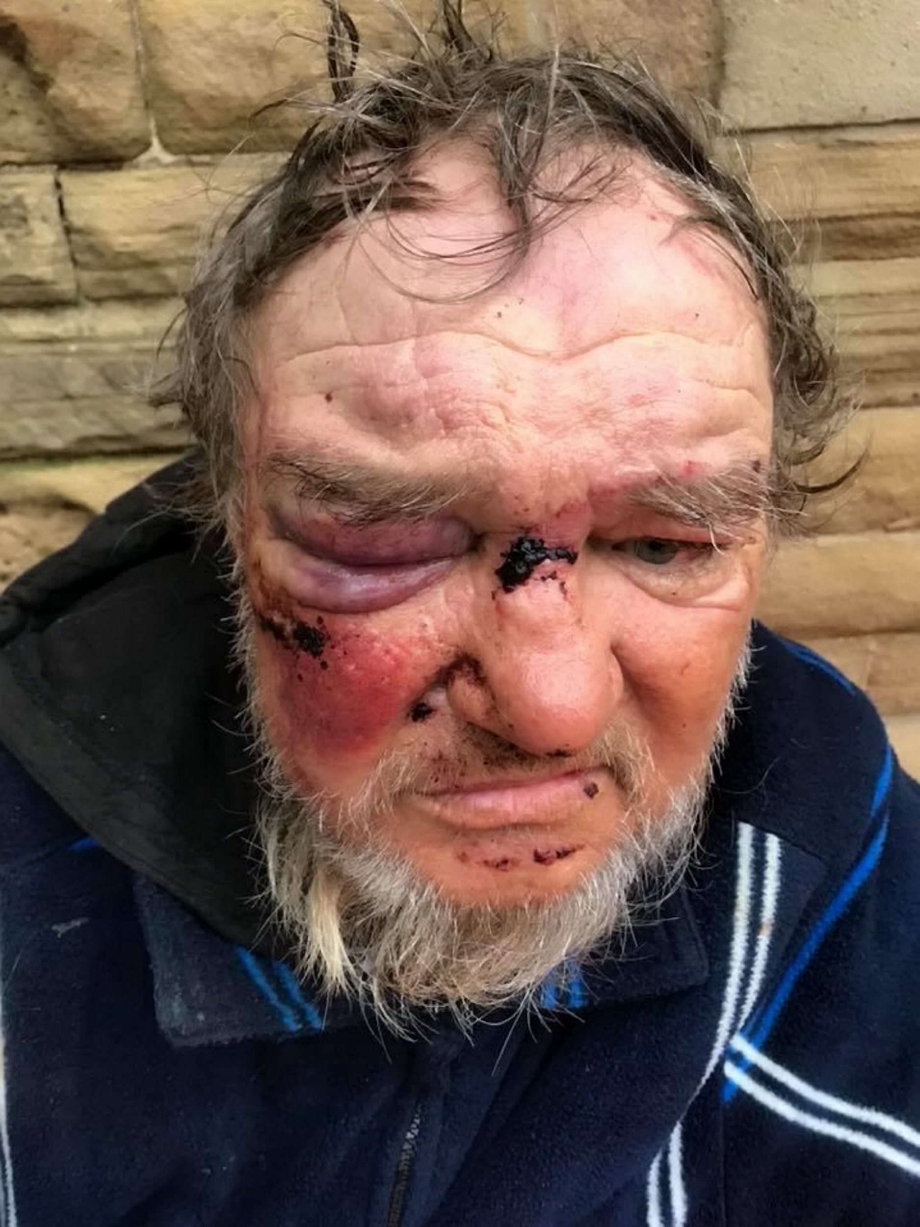 """Homeless man Igor Gieci, 55, after he was subjected to a 20 minute attack by three teenagers on the streets of Blackpool. Concerned citizens have flocked together to raise money for him and find him lodgings. See story SWOCigor.This is the heartwarming transformation of a homeless man """"beaten to a pulp by youths"""" after appalled locals rallied round to help him. Igor Gieci, 55, was jumped by three teenagers who kicked and punched him in his tent, ripping up his home and smacked him with his own crutches in a 20-minute attack. Outraged locals heard about the brutal assault and launched an online fundraising page to get him off the street while he recovers. And in just two days kind-hearted strangers have taken him for a haircut, bought him some prescription glasses and taken him to the pharmacy to get his prescriptions."""