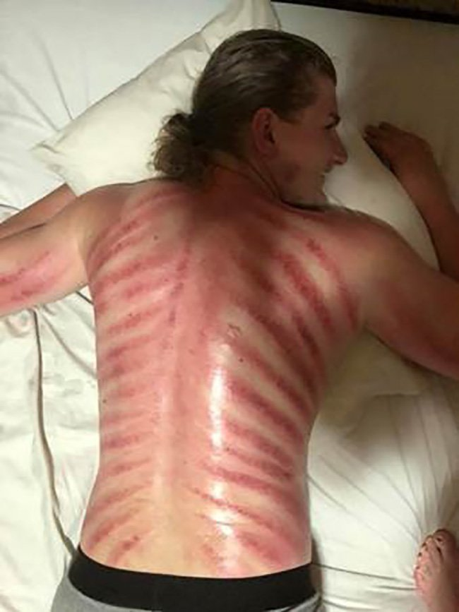 Why you should ALWAYS ask first: Australian tourist is left with horrific cuts on his back after getting a ???red dragon??? massage in Bali ??? because he didn???t know what it involved