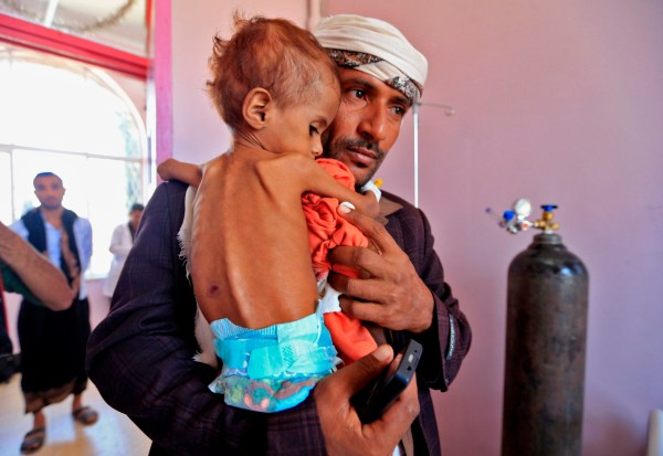 A Yemeni man carries his child who is suffering from malnutrition into a treatment centre at a hospital in the capital Sanaa on October 6, 2018. (Photo by Mohammed HUWAIS / AFP)MOHAMMED HUWAIS/AFP/Getty Images