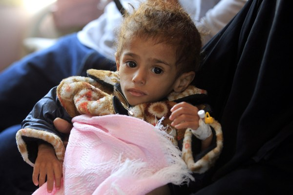 epa07074443 A Yemeni woman holds her malnourished child as he receives treatment at a hospital amid worsening malnutrition, in Sana'a, Yemen, 06 October 2018. According to reports, some 1.8 million Yemeni children are already malnourished and more than five million others are facing starvation as the ongoing conflict causes food and fuel prices to soar across in the war-torn and impoverished Arab country. EPA/YAHYA ARHAB