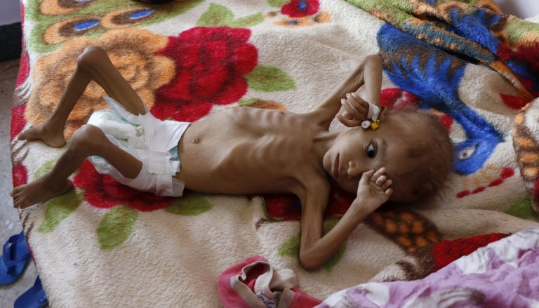SANA'A, YEMEN - OCTOBER 06: A malnourished child receives treatment at the Sabeen hospital on October 6, 2018 in Sana'a, Yemen. More than 10,000 people have been killed and about three million displaced due to the fighting between the UAE-backed STC and the Saudi-backed Yemeni government, ostensible allies against the Houthis, has broken out sporadically since that start of the war in 2014. (Photo by Mohammed Hamoud/Getty Images)