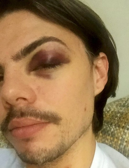 Tom Payne. See NATIONAL story NNGAY. Two gay men were brutally attacked for  sharing