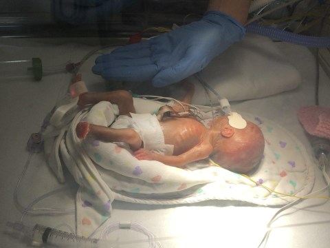 Baby weighs less than a pound after being born four months early