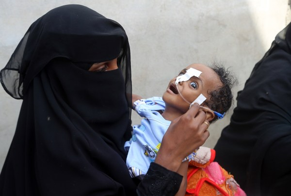 A Yemeni woman carries a malnourished child as she waits during food distribution in the province of Hodeida on May 30, 2018. - Hodeida port, Yemen's largest entry point for aid, is now in the crosshairs of the Saudi-led coalition which is intent on cutting off the Huthi rebels from alleged Iranian arms shipments. The United Nations has warned that any operation aimed at seizing Hodeida itself would disrupt the entry of aid shipments to Yemen, 70 percent of which flow through the rebel-held port. (Photo by ABDO HYDER / AFP) (Photo credit should read ABDO HYDER/AFP/Getty Images)