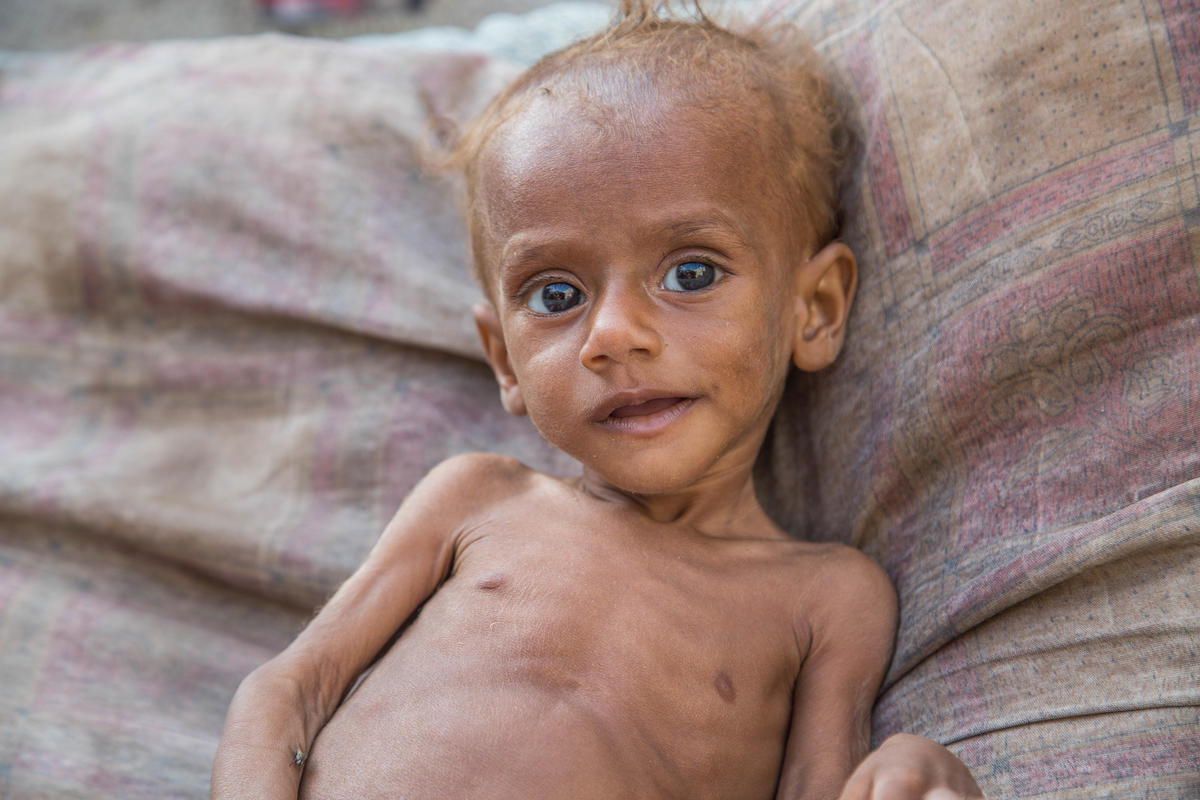 As a Yemeni mother I'm calling on world leaders to stop our children starving to death
