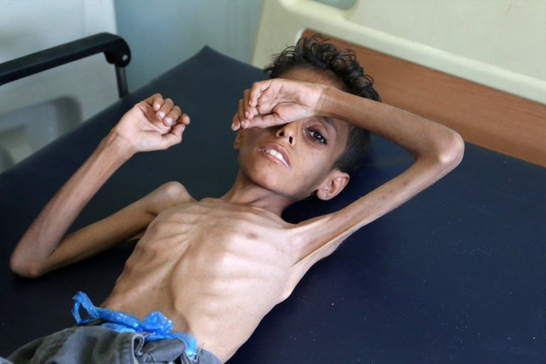 Yemeni boy Ghazi Ali bin Ali, 10, suffering from severe malnutrition lies on a bed at a hospital in Jabal Habashi on the outskirts of the city of Taiz, on October 30, 2018. - The war has left almost 10,000 people dead since the coalition intervened, and sparked what the UN has labelled the world's worst humanitarian crisis. (Photo by Ahmad AL-BASHA / AFP)AHMAD AL-BASHA/AFP/Getty Images