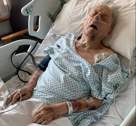 Undated handout photo issued by the Metropolitian Police of Peter Gouldstone in a hospitial bed after he was attacked and robbed in his own home. PRESS ASSOCIATION Photo. Issue date: Wednesday November 7, 2018. Peter Gouldstone is fighting for his life after being discovered with bruising to his body and a head injury on Evesham Road, Enfield, north London, on Tuesday morning, Scotland Yard said. See PA story POLICE Enfield. Photo credit should read: Metropolitian Police/PA Wire NOTE TO EDITORS: This handout photo may only be used in for editorial reporting purposes for the contemporaneous illustration of events, things or the people in the image or facts mentioned in the caption. Reuse of the picture may require further permission from the copyright holder.