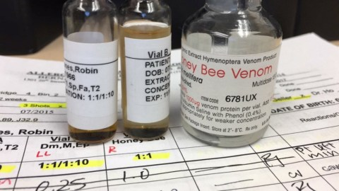 Woman Injected Herself With Venom To Cure Her Life