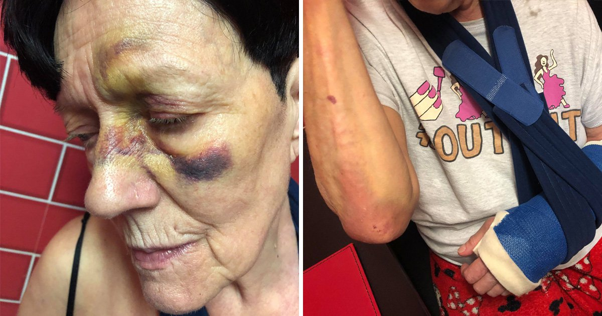 Pensioner, 74, left 'absolutelydisfigured' after falling over loose paving stone