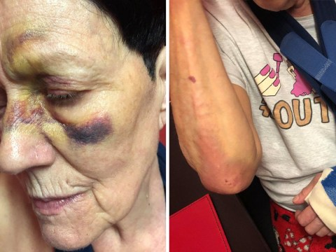 Pensioner, 74, left 'absolutely disfigured' after falling over loose paving stone