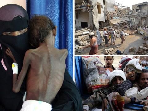 Mothers must decide which child survives in devastating Yemen crisis