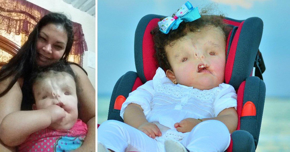 Family make desperate plea for surgery to help rebuild toddler's face