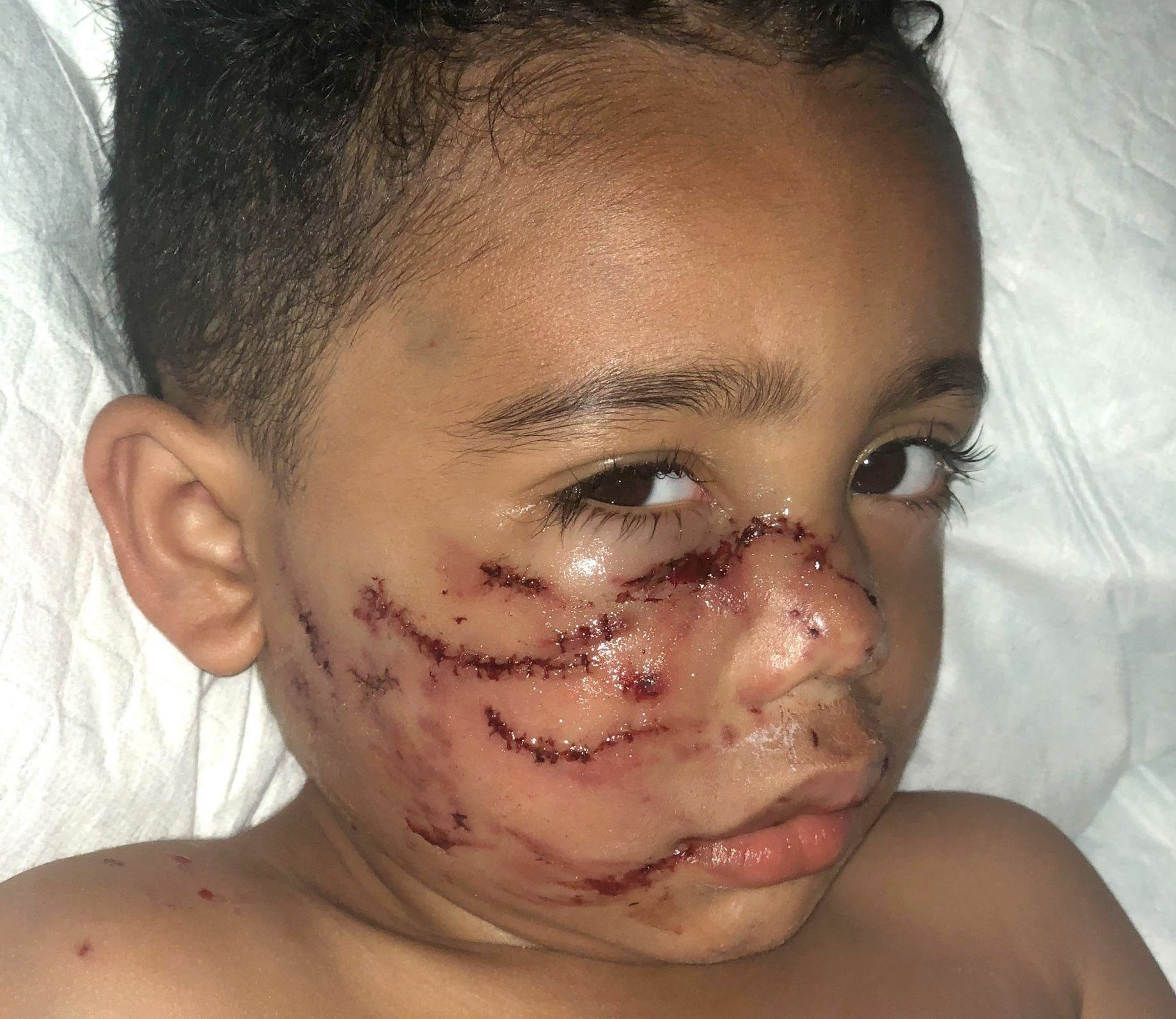 PORTLAND, OREGON, USA: Micajah in hospital after the attack. A MUM has revealed her heartbreak that made it difficult for her to even look at her toddler after his face was mauled by her parents??? pet dog and has now set up a Go Fund Me page so she can pay for his facial reconstruction. On May 12, this year, insurance coordinator, Sarah Fuller (28) from Portland, Oregon, USA, was at work whilst her parents were looking after her three-year-old son, Micajah, who was two-and-a-half at the time just like they had done countless times before. Then at around lunchtime on that day, Sarah received a devastating phone call from her mum that no parent ever wants, telling her that her adorable little boy had been attacked by the family Pitbull, Bobo, who they had had for nine-years. Sarah left work and drove frantically to the hospital where her parents had taken Micajah but was warned by the nurse that she couldn???t go into the room until he had been bandaged up as his injuries were so shocking. At first, Sarah found it incredibly difficult to look at her son without breaking down. Micajah needed to undergo facial reconstruction surgery due to the punctures from the bite going through his cheek, which stretched the nerves in his face, teared back his gums and pulled out his front tooth, he also underwent gum grafting and will have to undergo further facial surgery once he has finished growing. Sarah has set up a Go Fund Me page to help cover the costs. Understandably, the attack caused tension within Sarah???s family but her parents took full responsibility for Bobo???s actions and Sarah would never sue her parents as they mean the world to her. MDWfeatures / Sarah Fuller
